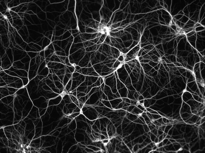 Dissociated culture of rat hippocampal neurons